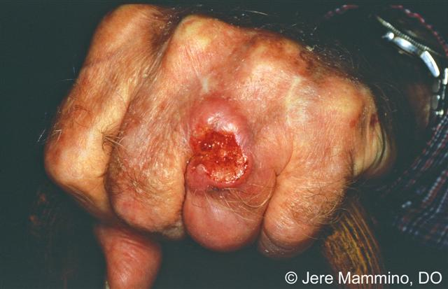 Squamous Cell Carcinoma American Osteopathic College Of