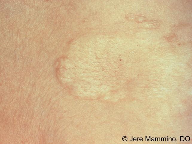 dermatology terms #10