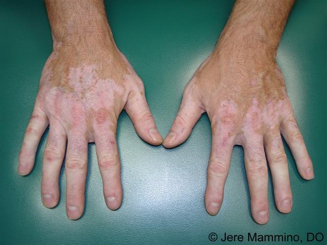 Vitiligo American Osteopathic College Of Dermatology Aocd