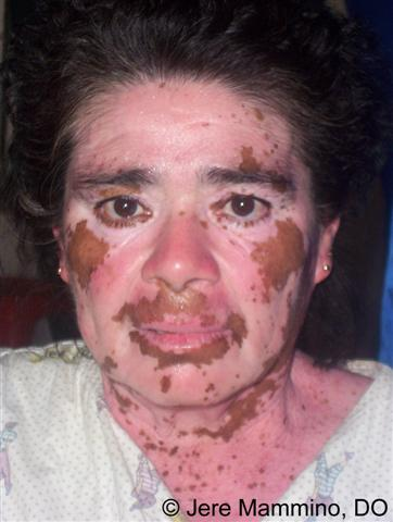 Image result for vitiligo