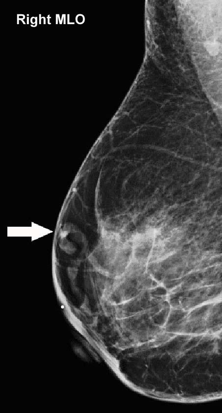 Zjaocr article breast imaging mondor s disease 01 15 13