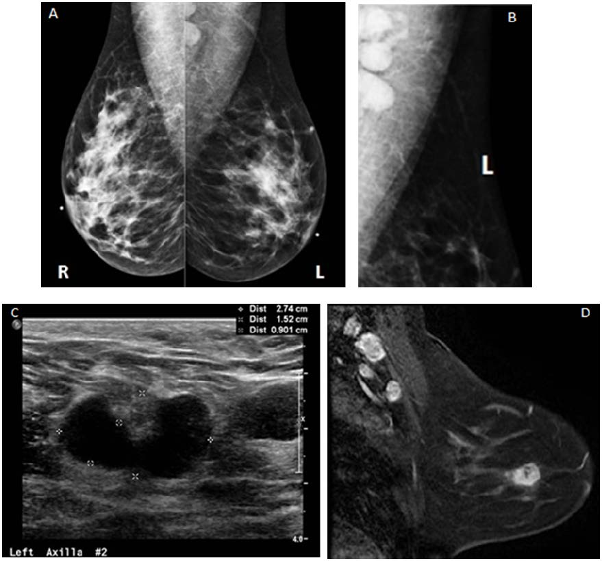 Zjaocr Article Breast Imaging Unilateral Axillary Lymphadenopathy