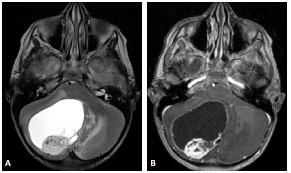 Zaocr article neuroimaging imaging of primary posterior for Cystic lesion with mural nodule