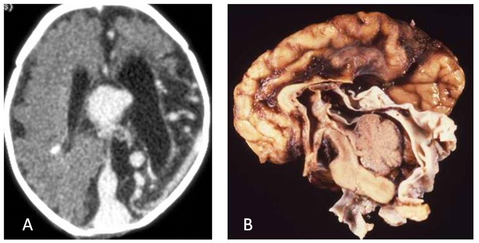 zAOCR Article [Neuroimaging: Vascular Malformations of the Brain ...