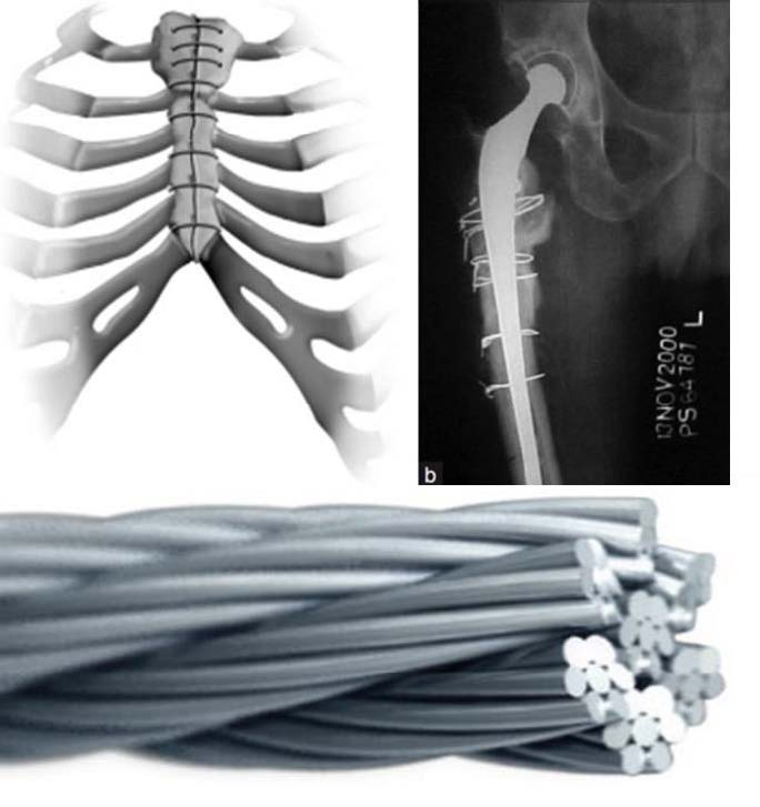 Scalable Medical-Grade Magnesium Wire