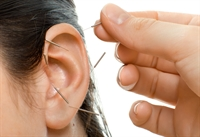 Ear Acupuncture and Healing Trauma