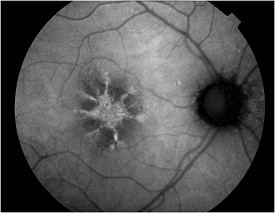 central serous retinopathy caused by corticosteroids