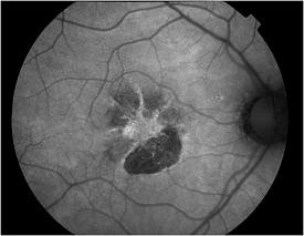 Resultado de imagen de retinal autofluorescence
