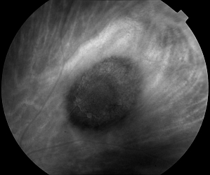 Choroidal Nevus Red Filter 630nm
