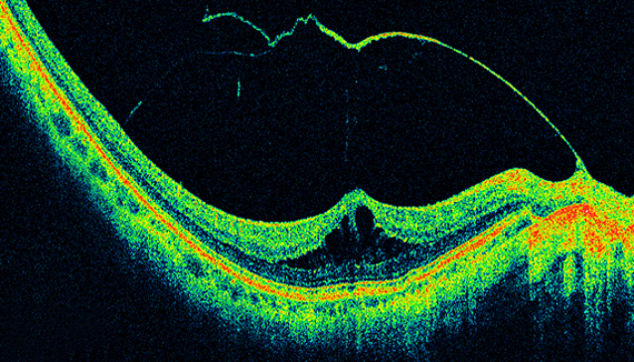 Retinal Oct Imaging Ophthalmic Photographers Society